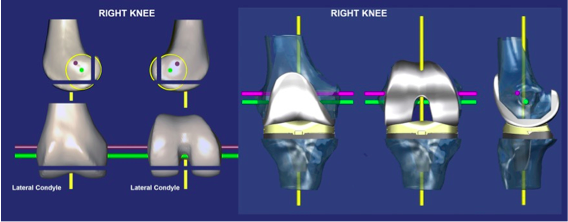 Kinematic Knee Replacement